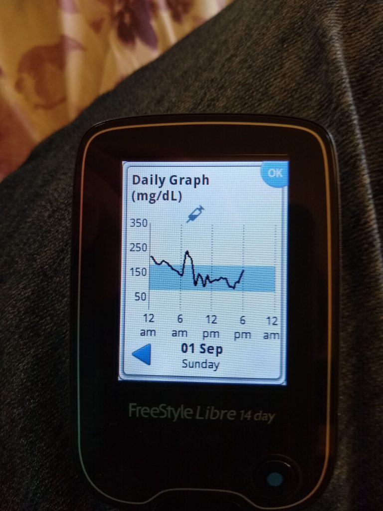 CGM graph showing glucose level on day 1