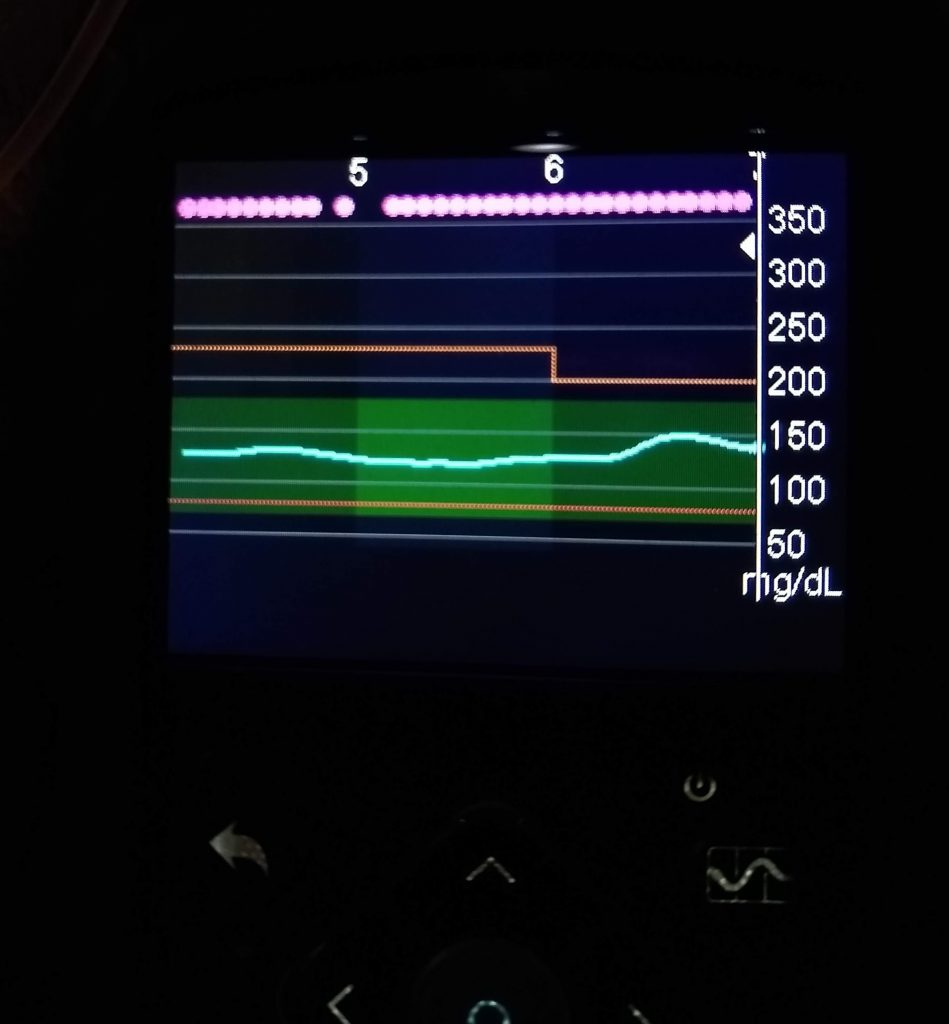 Minimed 670G Insulin Pump Graph